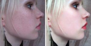 Fotode retušeerimine
